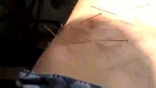 疱疹后N痛(来自拍客手机客户端 下载地址:http://video.sina.com.cn/app/sinapaike.html)
