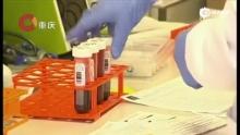 美国卫生官员说研制寨卡疫苗需数年时间 20160131 CQTV早新闻